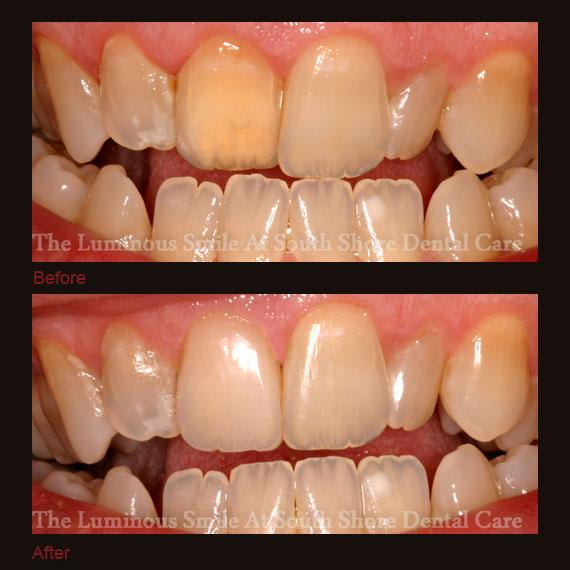 Yellow front tooth repaired with bonding