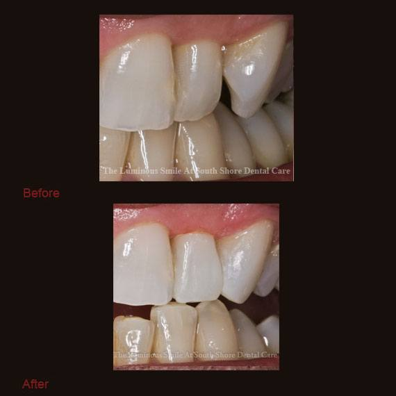 Oddly shaped tooth and bonding repair