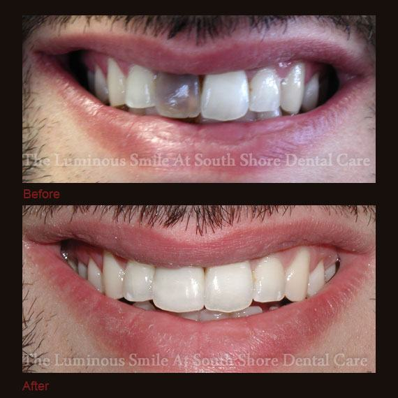 Dark black front tooth repaired with bonding
