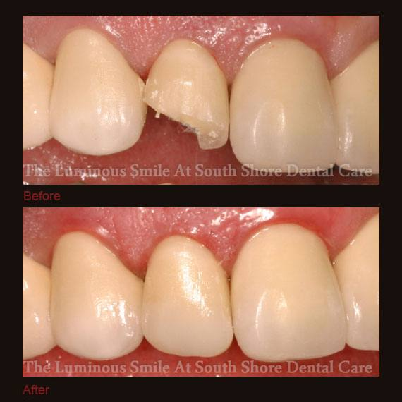 Broken front tooth repaired with bonding