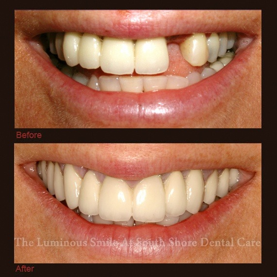 Before and after images missing tooth and porcelain veneers