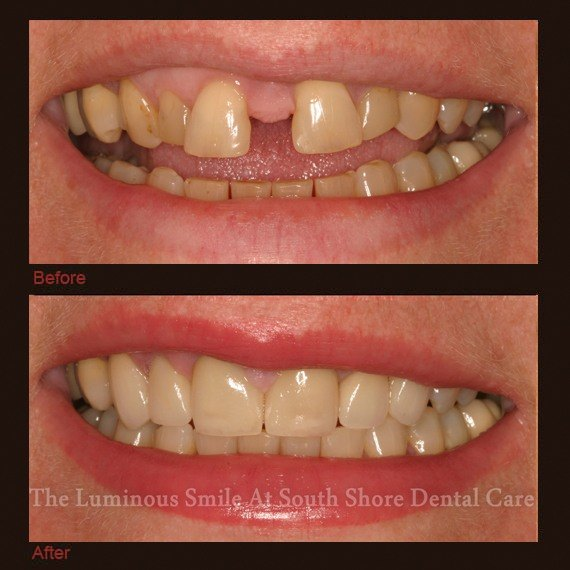 Damaged and discolored teeth repaired with dental crowns