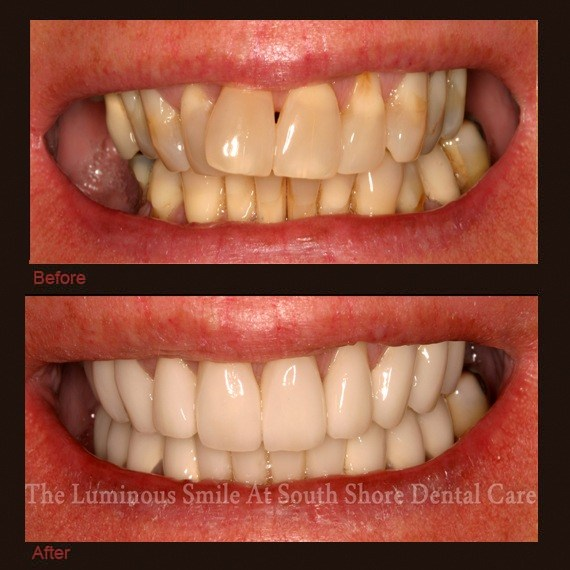 Before and after images discolored decayed teeth and porcelain veneers