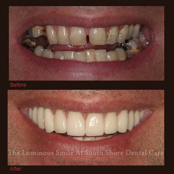 Severely gapped front teeth repaired with dental crowns