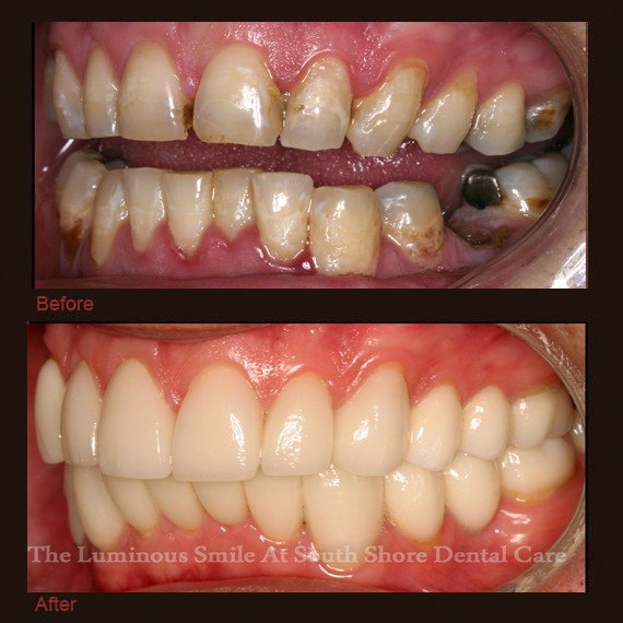 Before and after images decayed damaged smile and veneer treatment