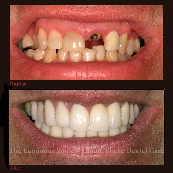 Before and after images missing tooth and veneers