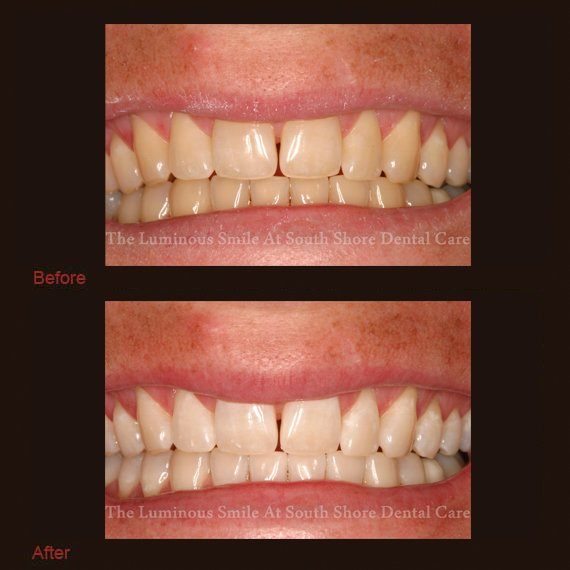 Yellow teeth and bright smile following whitening