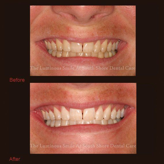 Discolored teeth and flawless teeth whitening results