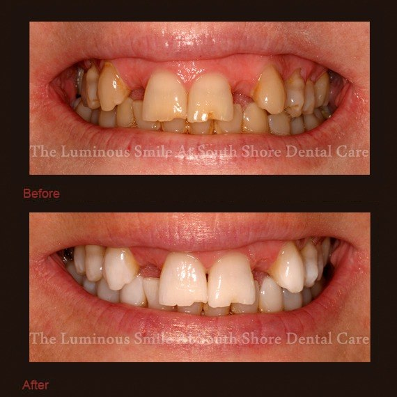 Severely discolored teeth and white smile after teeth whitening