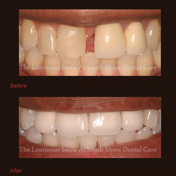 Gapped and yellowed teeth and bright smile following teeth whitening