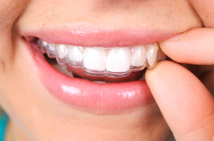 Learn More About The Effects Of Invisalign In Massapequa