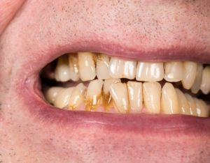 man grimacing with stained teeth
