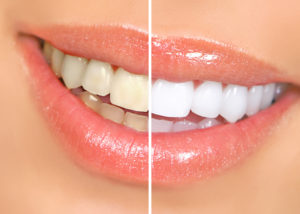 teeth before and after picture