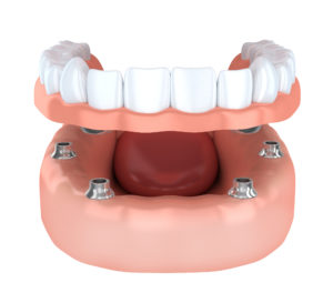Implant-retained denture