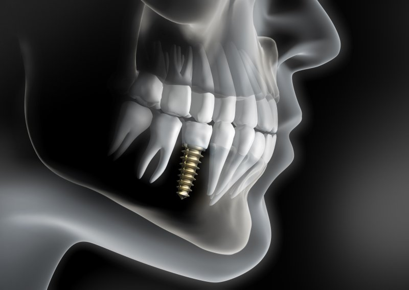 a digital skeleton with a dental implant on the lower arch