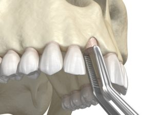 diagram of a bone graft